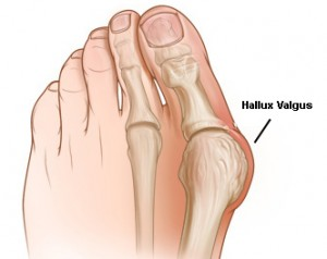 Hallux Valgus aka bunions - Chiropractic Symptoms and Conditions