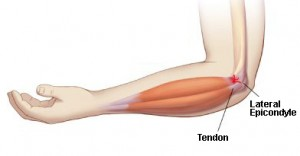 Lateral Epicondylitis aka Tennis Elbow - Chiropractic Symptoms