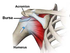 Shoulder Impingement Syndrome - Chiropractic Symptoms and Conditions