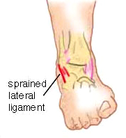 Lateral Inversion Sprain - Ankle Chiropractic Symptoms